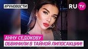 Анну Седокову обвинили в тайной липосакции!