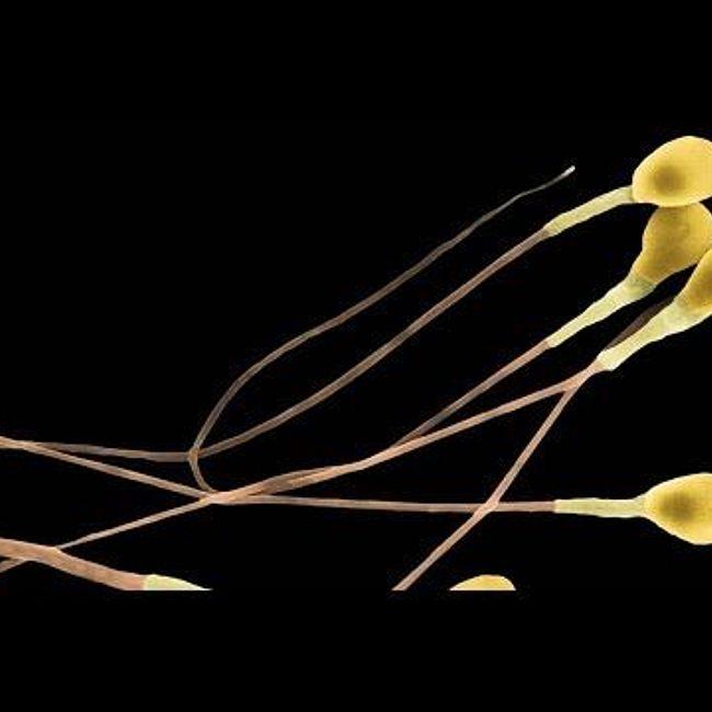Фрагментация ДНК сперматозоидов