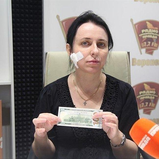 Жительница Воронежа: «В банке мне проткнули щеку канцелярским ножом!»